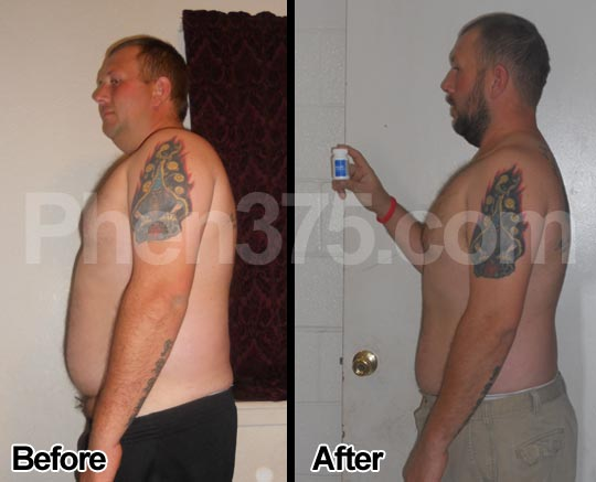 Weight loss achieved using Phen375 diet pills